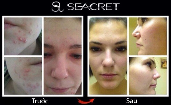mud-soap-seacret