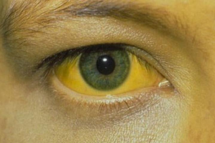 Bệnh sốt vàng da