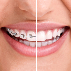 how long does dental braces treatment last