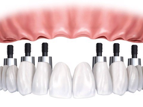 dental implant and problems to be avoided
