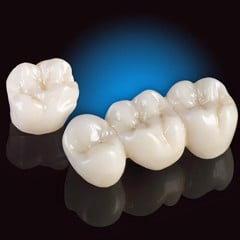 price of porcelain crowns