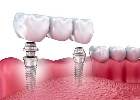 Implantation of implants immediately requires that the bone of the tooth achieves the ideal condition