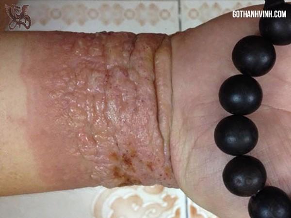 hậu quả khi đeo vòng tay trầm hương giả