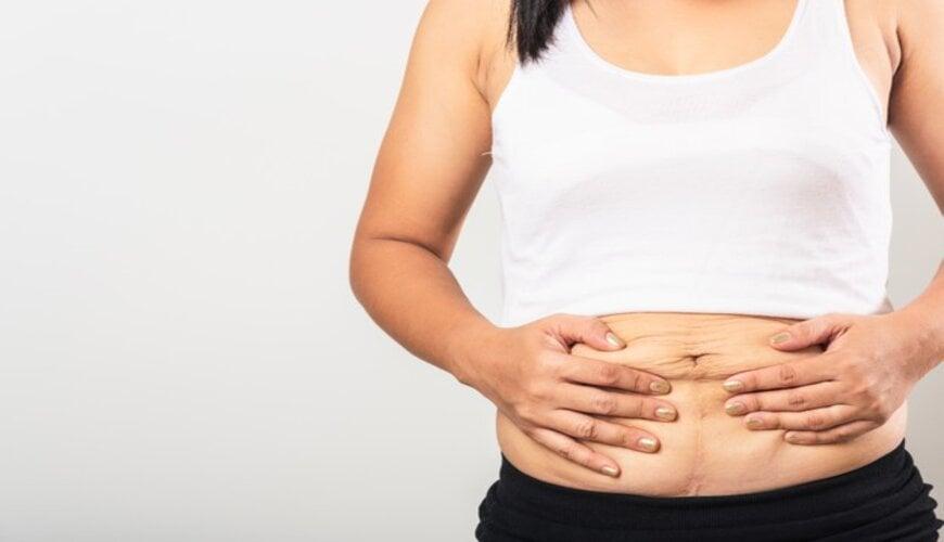 vết rạn ở bụng sau khi sinh