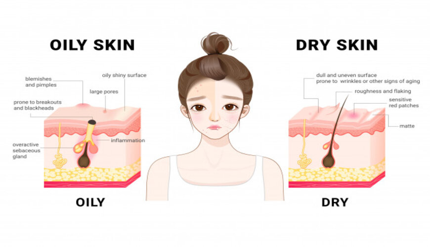 đặc điểm của da dầu