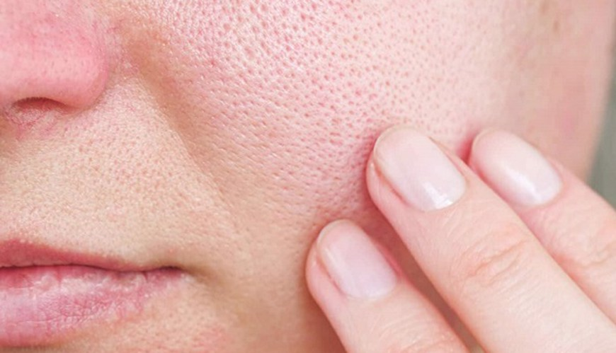 Lỗ chân lông to thường gặp ở da dầu