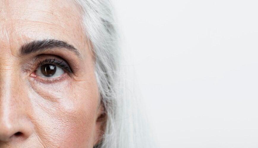 bọng mắt xuất hiện khi da bắt đầu lão hóa