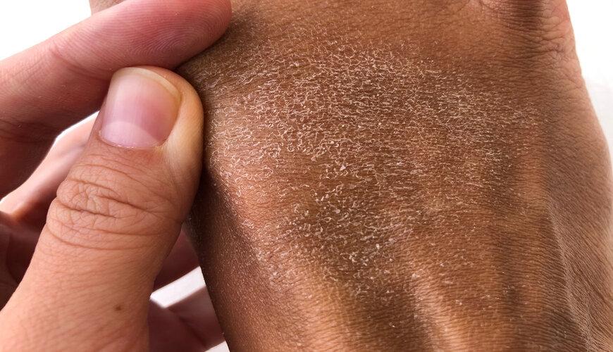 nguyên nhân khiến da khô bong tróc