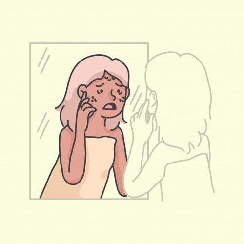 nội tiết tố ảnh hưởng đến mụn ẩn