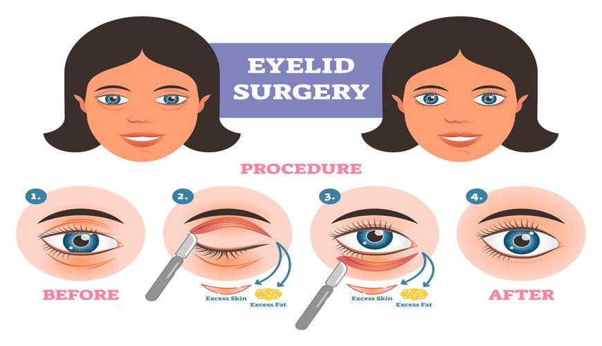 phẫu thuật mí mắt cắt bọng mắt