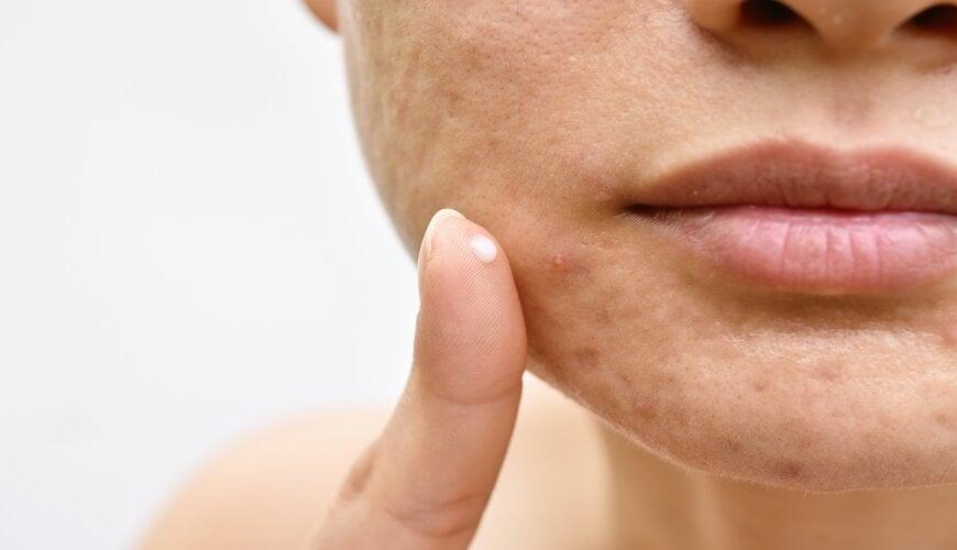 Mụn là dấu hiệu của tình trạng tổn thương da