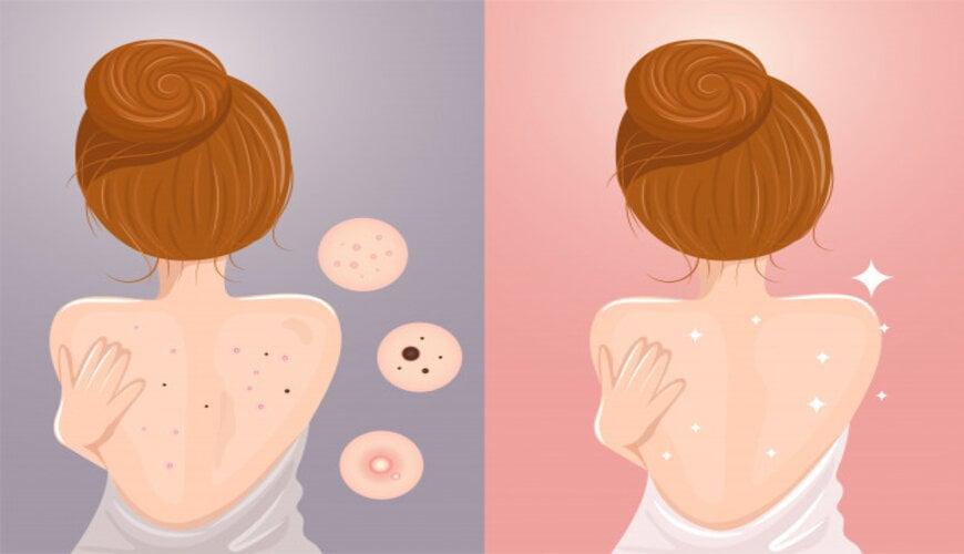 các phương pháp trị mụn lưng