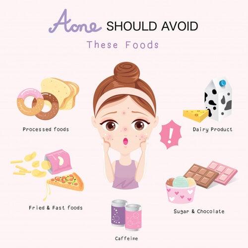các loại thức ăn dễ gây mụn ẩn
