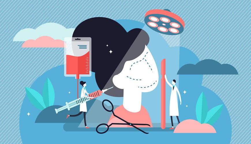 phẫu thuật lạnh điều trị sẹo lồi