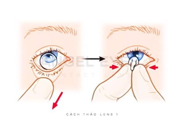 cach-thao-lens