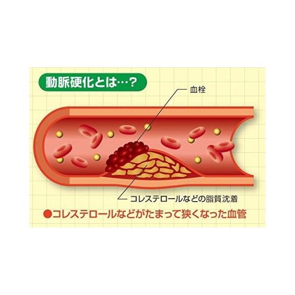 Thuốc phòng và hỗ trợ điều trị xơ vữa động mạch Healthoil Nhật Bản