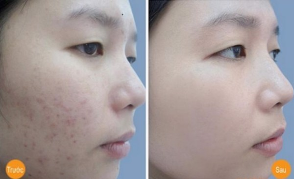 Kem Hỗ Trợ Trị Mụn Neutrogena On the spot Acne Treatment 21g