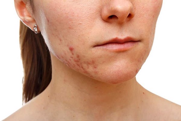 Làm thế nào để chăm sóc cho làn da đang bị stress?