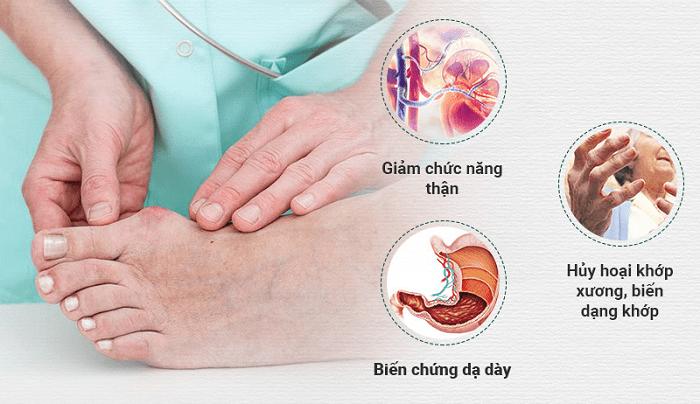 Bệnh gout là căn bệnh thường gặp ở người già