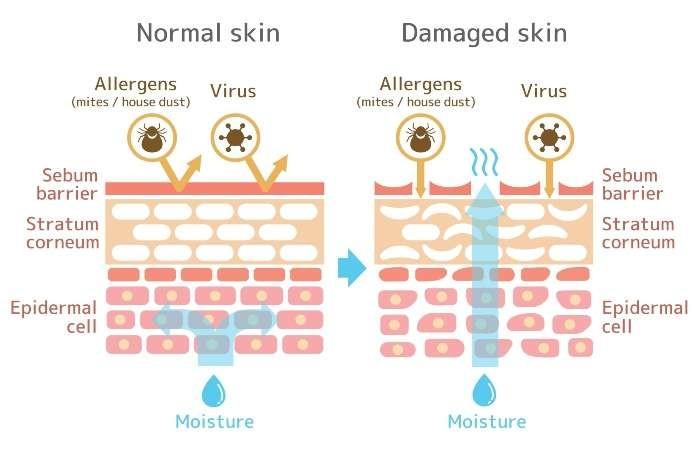 Niacinamide củng cố hàng rào bảo vệ da