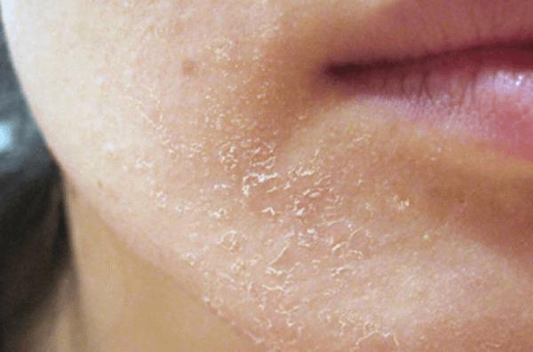 da mặt bị sần sùi là gì