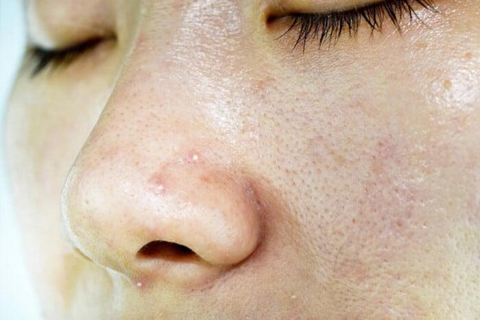 da đổ nhiều dầu khiến lỗ chân lông bít tắc, hình thành mụn