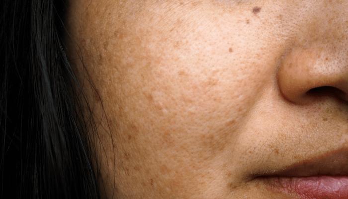 Da không đều màu biểu hiện bởi các đốm sáng, tối đan xen trên da do sự chênh lệch về phát triển sắc tố
