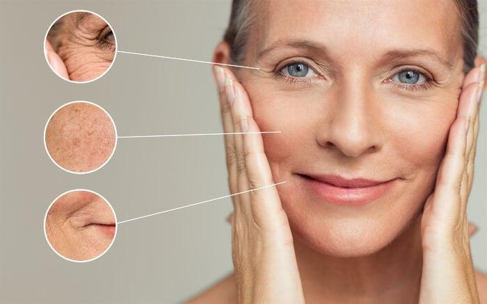 Da lão hóa nhanh, kém đàn hồi do thiếu hụt collagen