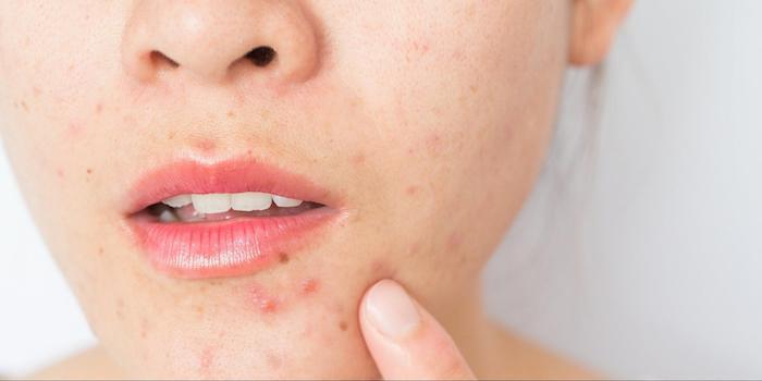 da mặt nổi mụn khiến bề mặt da trở nên sần sùi, kém mịn màng