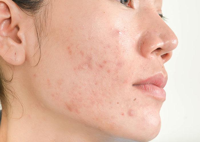 da mặt sần sùi nổi mụn là do lỗ chân lông bị bít tắc