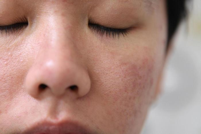 da mặt sần sùi vì mụn, lỗ chân lông to trông sẽ kém mịn màng