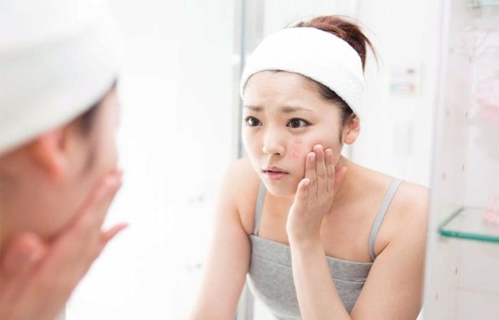 Độ tuổi dậy thì là giai đoạn làn da có nhiều sự biến đổi