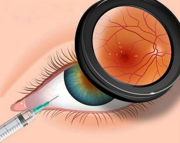 công dụng của vitamin E đối với thị lực