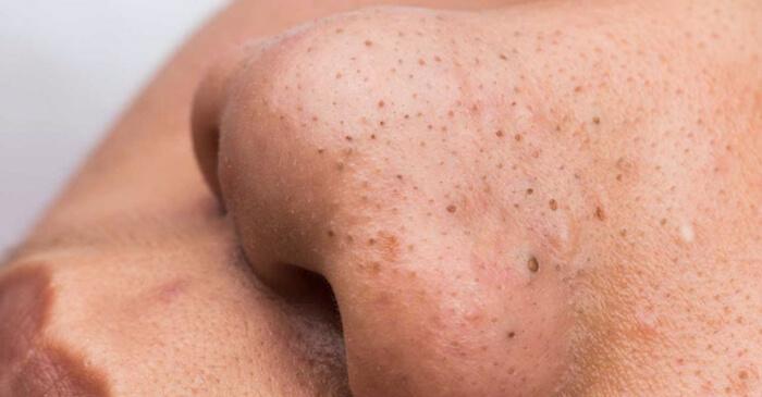 da mặt không được làm sạch kĩ càng khiến lỗ chân lông to ra, sinh mụn đầu đen