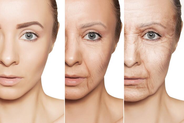 Làn da dần trở nên khô và lão hóa dần khi tuổi tác tăng cao
