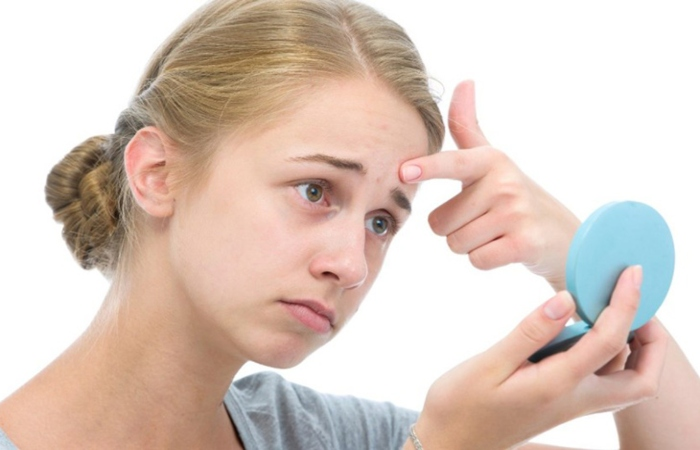Làn da tuổi dậy thì thường gặp vấn đề về mụn