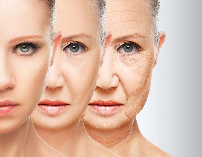 Tuổi tác tăng dần kéo theo hệ luỵ làm lỗ chân lông to ra