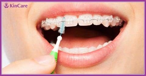 vệ sinh kẽ răng