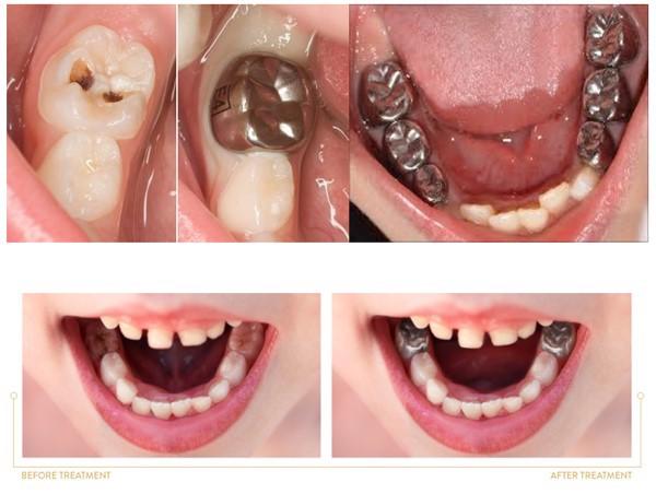 Chụp thép bảo vệ răng sữa cho trẻ