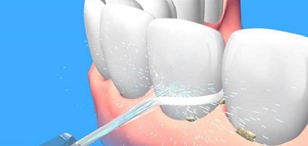 Vệ sinh răng miệng bằng máy tăm nước
