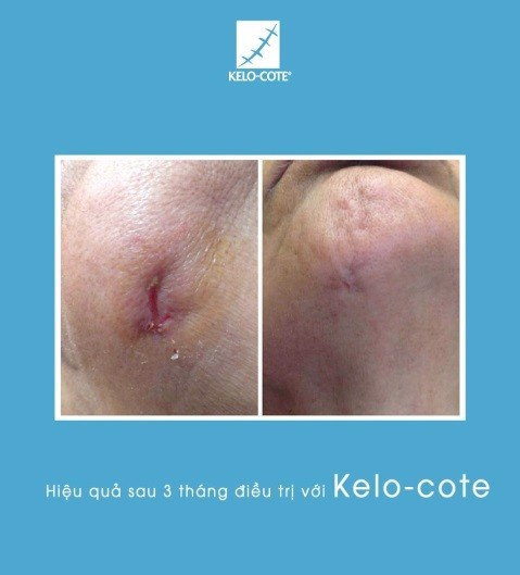 review-kelo-cote