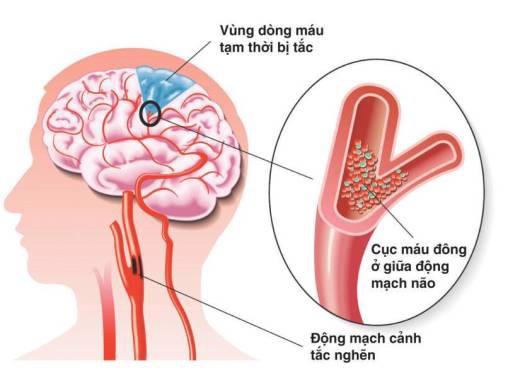 Các bài thuốc Đông y chữa đau mỏi vai gáy hiệu quả