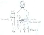 trị đau lưng do phong thấp với dải nhiệt hồng ngoại