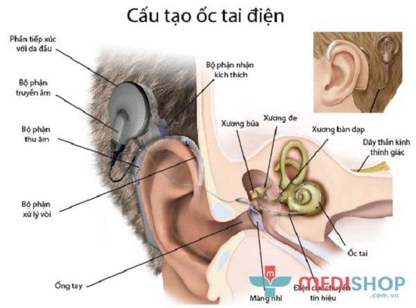 Cấy ốc tai là dạng máy trợ thính hiện đại.
