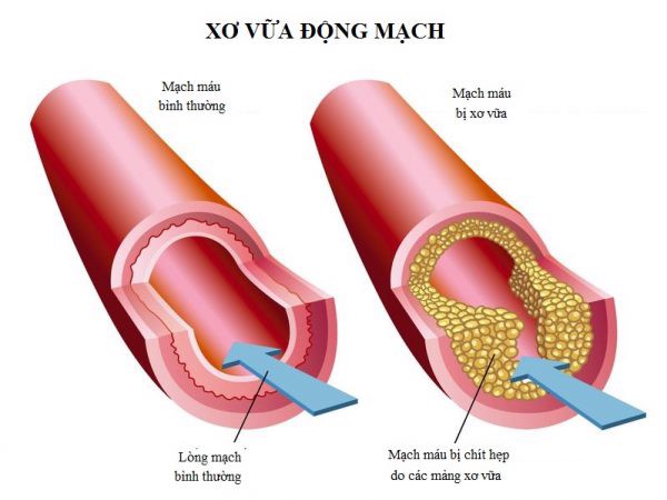 Hiểu về cholesterol để bảo vệ sức khỏe của chính mình. – Kangen.vn