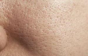 Làn da dầu với vẻ bóng loáng và lỗ chân lông có thể nhìn thấy được
