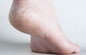 Da bàn chân thường có xu hướng bị khô và nứt nẻ