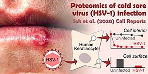 HSV-1 (Herpes miệng)