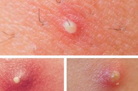 Mụn mủ gây nhức, có phân da xung quanh bị đỏ, tấy, bên trong chứa dịch mủ