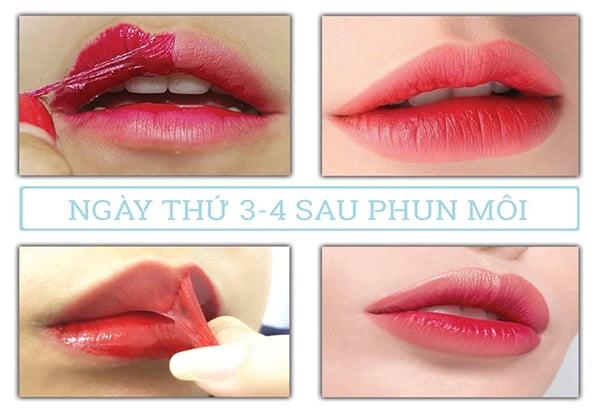 Ngày thứ 3 đến ngày thứ 4 sau phun môi